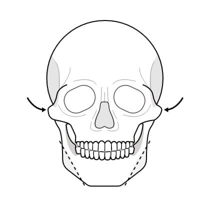 연골 성형술 수술과정 이미지1