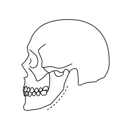 연골 성형술 수술과정 이미지2