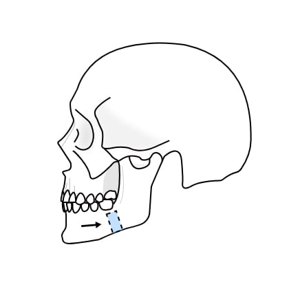 연골 성형술 수술과정 이미지3