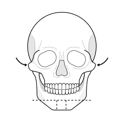 연골 이식술 수술과정 이미지1