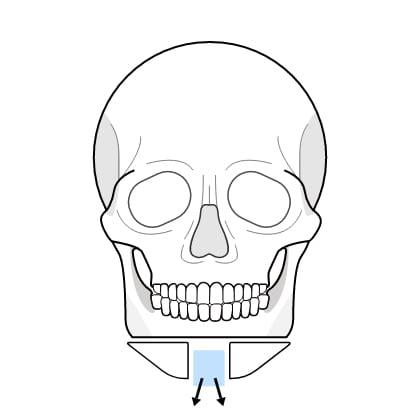 연골 이식술 수술과정 이미지2