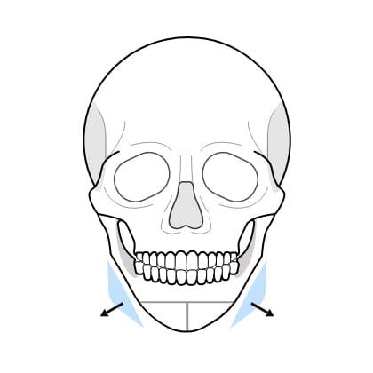 연골 이식술 수술과정 이미지3